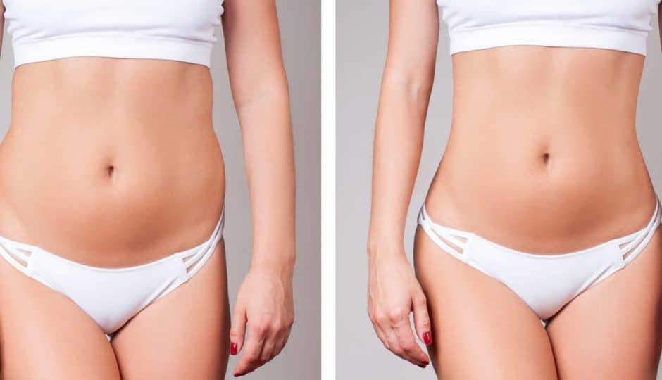 Liposuccion: pour se débarrasser des graisses abdominales récalcitrantes