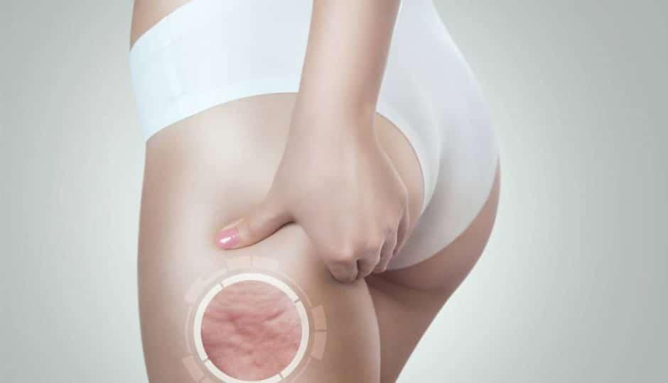 5 astuces pour combattre la cellulite